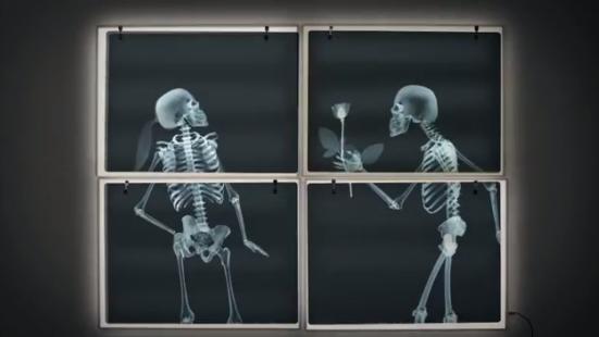 Anadolu Sigorta'dan Gerçek Röntgen Filmleriyle Bir Aşkın Röntgeni