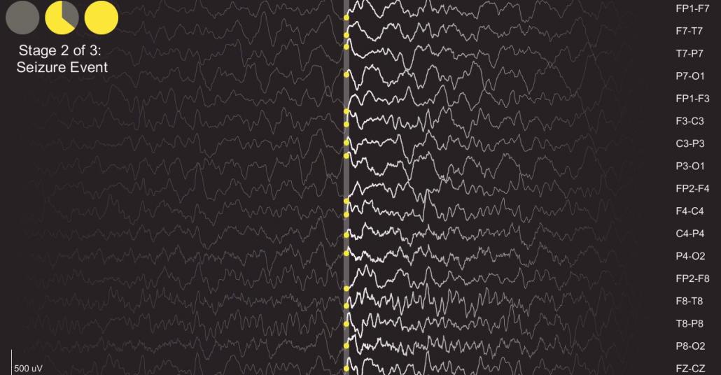 Epilepsi Nöbetindeki Beyin Dalgalarından Müzik