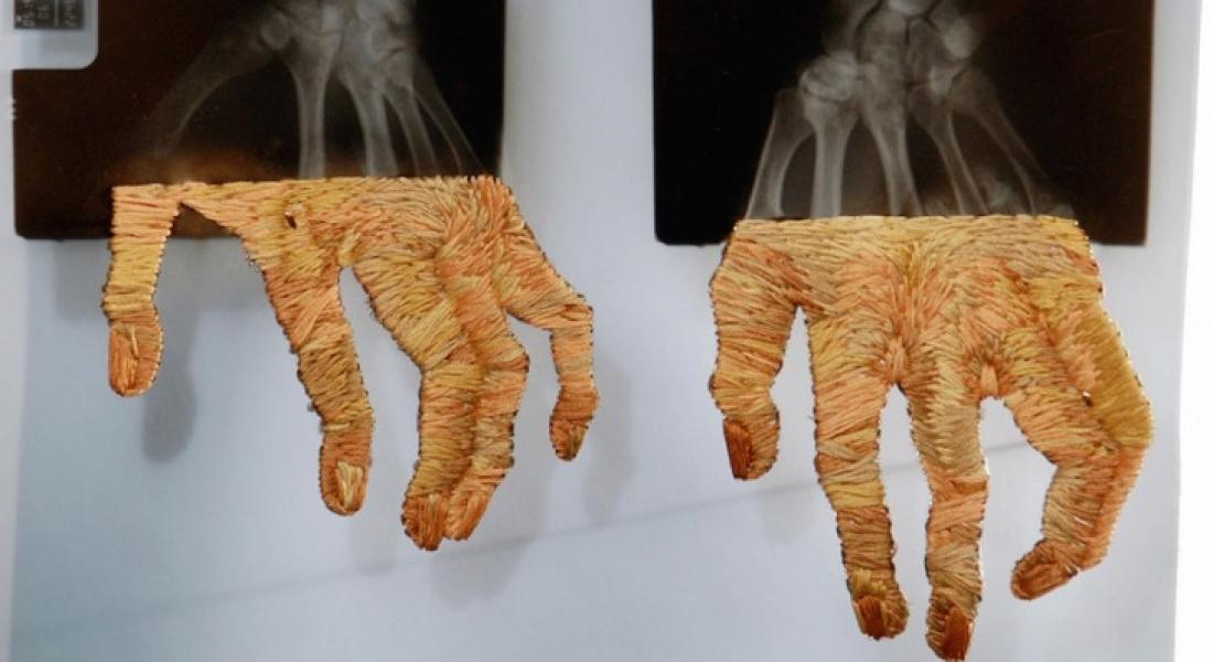 İşlemelerle Tamamlanmış Röntgen Filmleri