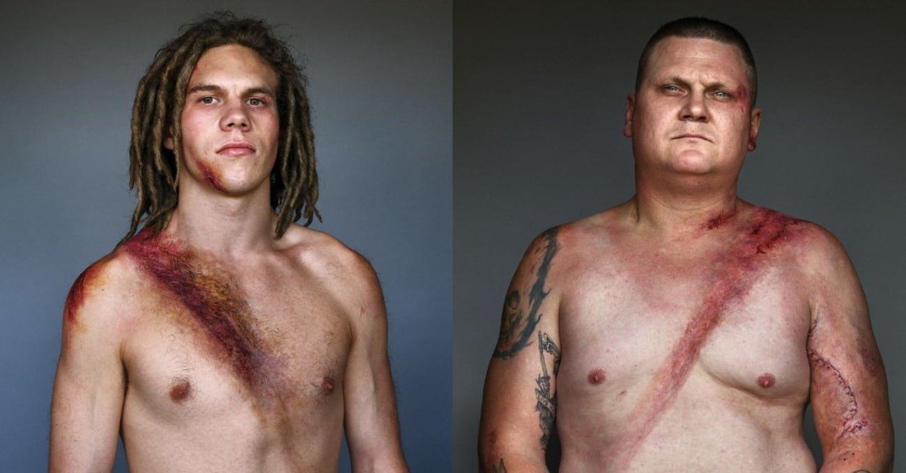 Emniyet Kemeri Sayesinde Hayatta Kalan İnsanların Portreleri